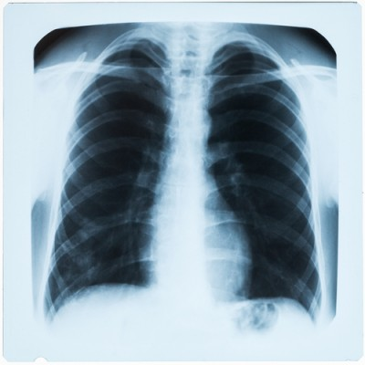 Airways Clearance in Cystic Fibrosis