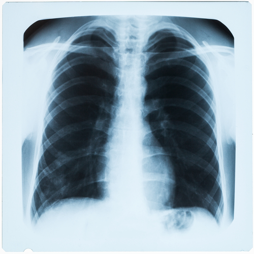 Airways Clearance in Cystic Fibrosis Relative to Timing of Hypertonic Saline Inhalation