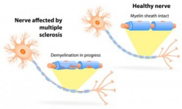 Primary Progressive Multiple Sclerosis: What You Need To Know