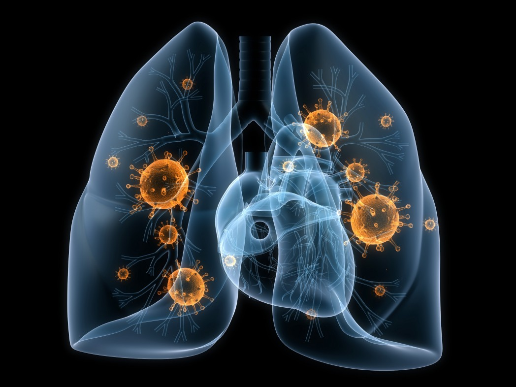 Stereotactic Ablative Radiotherapy Explored In Patients With Operable Non-Small Cell Lung Cancer