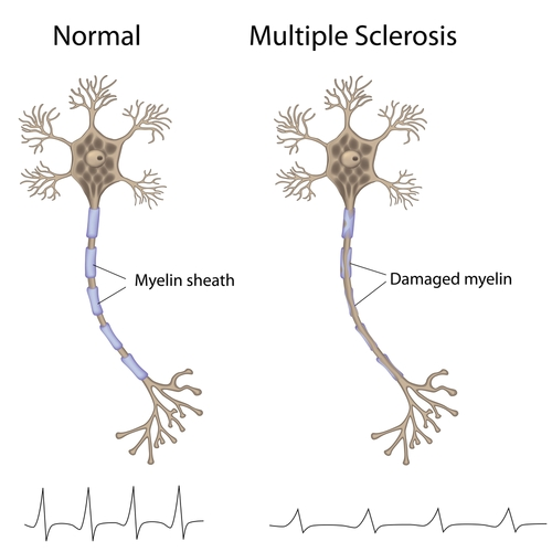Cause of Multiple Sclerosis & Other Demyelinating Diseases Given New Explanation By Researchers