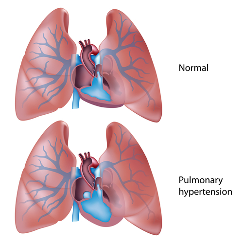 Pulmonary Hypertension Therapies Could Improve, Thanks To New Yale Study