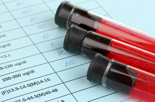 Simple Blood Test for Alzheimer's Diagnosis Focus at UNT Health Science Center