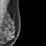 Plano-Based VuCOMP Releases New M-Vu Breast Density Version 2.0