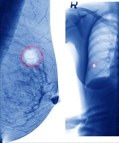 CDK4/6 Inhibitor Palbociclib Shows Promise In Slowing Breast Cancer Progress