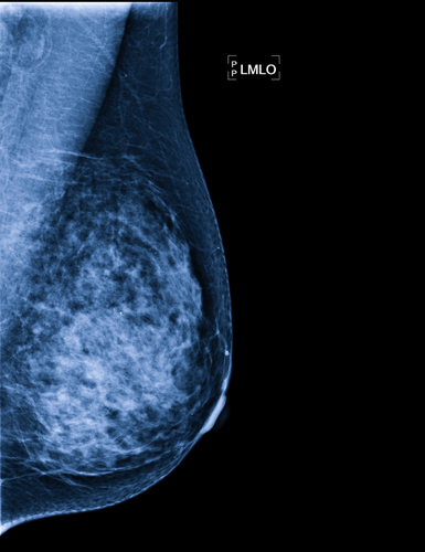Seno's Imagio Breast Imaging System For Improved Breast Cancer Diagnosis Picks Up Impressive CE Mark From EU