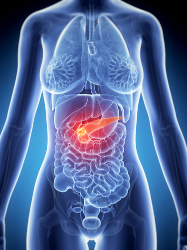 "MD Anderson Cancer Biologists Find ""Defensive Fibrotic Response"" in Pancreatic Cancer"
