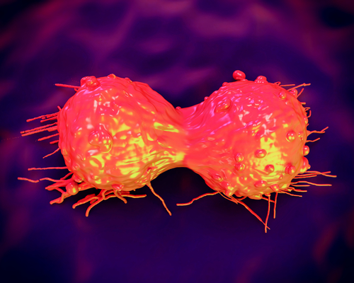 Biomarkers For Early Stage Pancreatic Cancer Diagnosis Investigated at MD Anderson