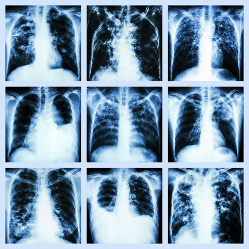 First Non-Cystic Fibrosis Bronchiectasis Patient in Phase 3 Trial Treated with Aradigm's Pulmaquin