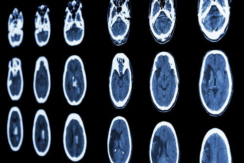 UT Southwestern Research Reveals That Blocking Cdk5 Enzyme Minimizes Injury Caused By Stroke