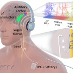 MicroTransponder Develops Vagus Nerve Stimulating System to Treat Tinnitus