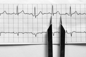 Heart Rhythm Disorder