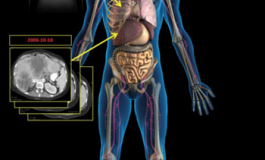 """Facebook For Medicine"" ViSion Software Advances Diagnostic Radiology Reporting By A Century"