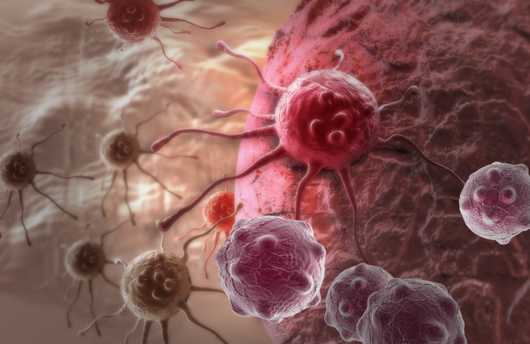 Accurate, Non-Invasive, Highly Sensitive Imaging Tool to Detect Early Cancer Metastasis in Lymph Nodes