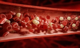 New Insight into the Link Between Telomere Dysfunction and Myelodysplastic Syndromes