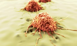 MD Anderson Researchers See Potential Advanced Prostate Cancer Therapy in Immune Suppressor Cells