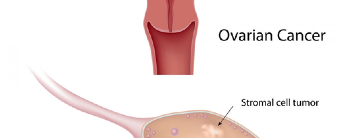 New Route For Ovarian Cancer Spread Uncovered By MD Anderson Researchers