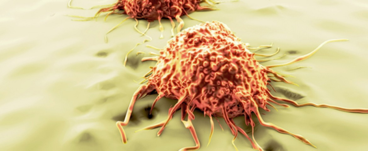 UT Southwestern Researchers Identify Protein Critical To The Spread of Cancer Cells