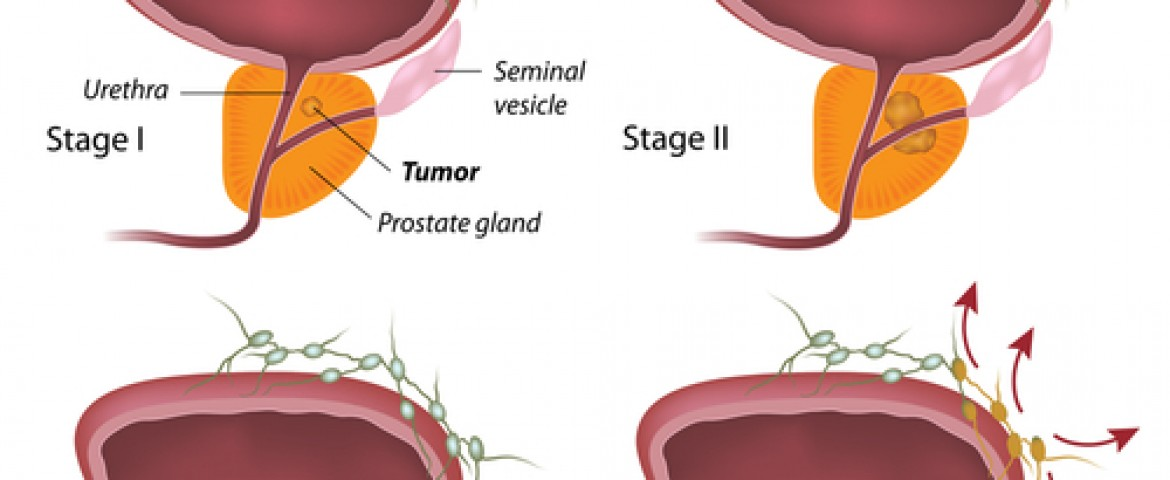 MD Anderson and Karyopharm Announce New Phase of Prostate Cancer Drug Trial